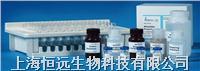 犬转移生长因子β1ELISA试剂盒 HY23519E